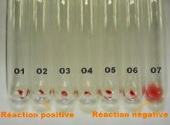 Photo d'une recherche d'anticorps réalisée en tubes
