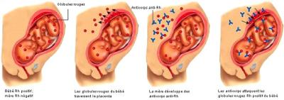 Schéma de l'incompatibilité foeto-maternelle (IFM)