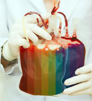 Concentr�?�© de globules rouges (CGR) des homosexuels hommes